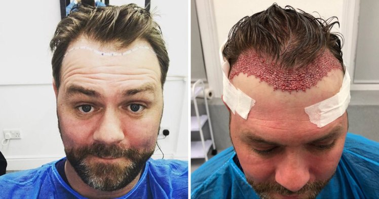Image result for Hair Transplant Side Effects