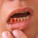 5 Home Remedies for Gum Infections